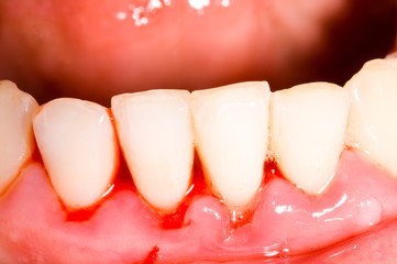 Home remedies for tooth pain